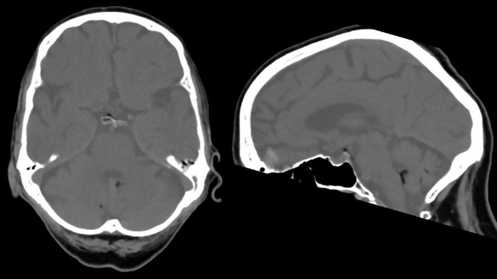 CCT basal axial sagittal